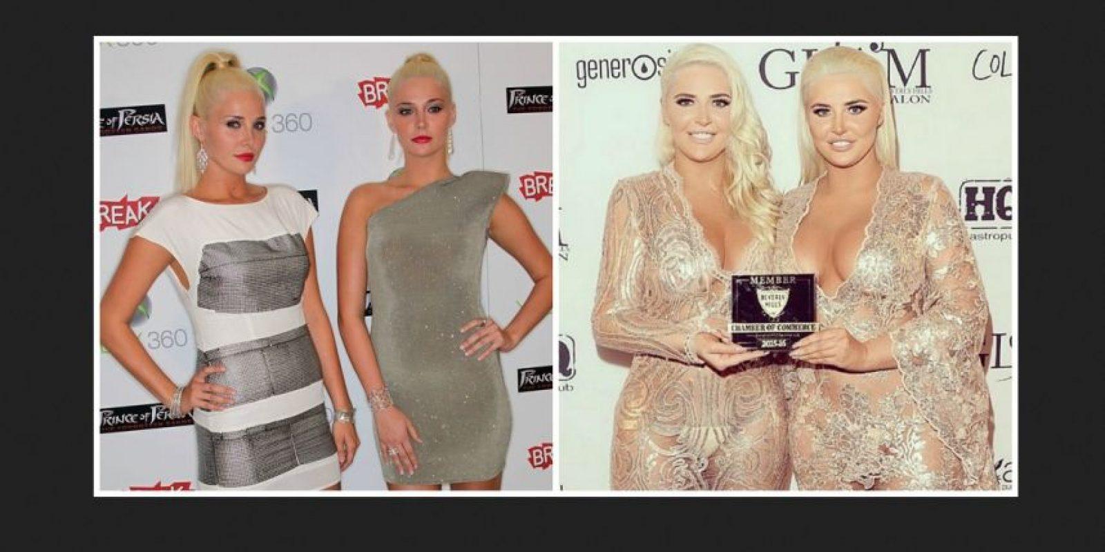 Antes y después Foto:Getty Images