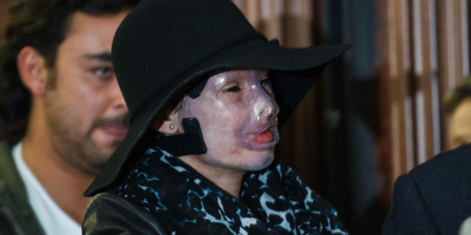 Con la presencia de varias víctimas, entre ellas Natalia Ponce de León, el presidente Juan Manuel Santos sancionó la Ley deácidos. Foto:Publimetro