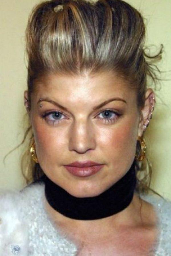 Con las inyecciones de esta sustancia se puede obtener una piel más tersa, además de desaparecer las arrugas y líneas de expresión. Foto:Getty Images