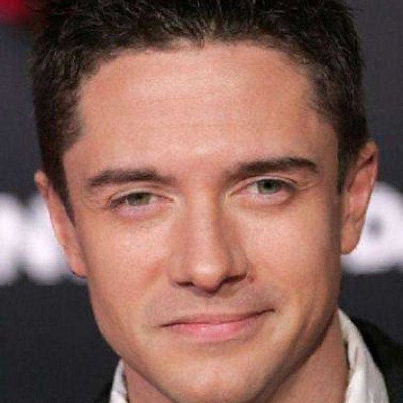 El actor, Topher Grace, también padece estrabismo. Foto:Getty Images