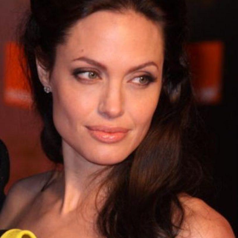 De forma preventiva, se hizo la mastectomía. Foto:vía Getty Images