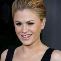 Anna Paquin también tiene los dientes separados. Foto:vía Getty Images