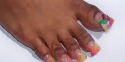 Las uñas cuadradas no permiten caminar. Foto:vía NowayGirl