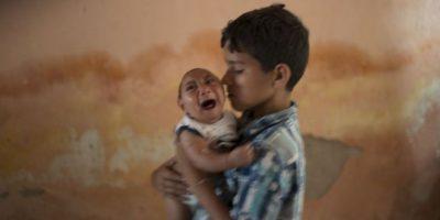2. ¿Han existido brotes de Zika? Foto:AP