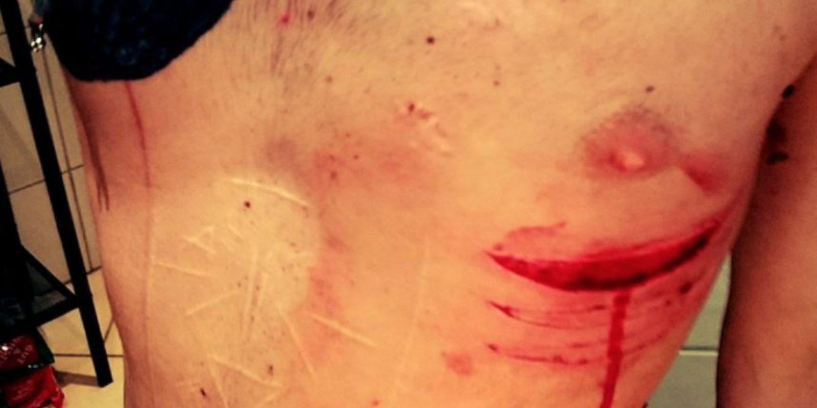 Y las cicatrices. Foto:vía Facebook/Joel Patric