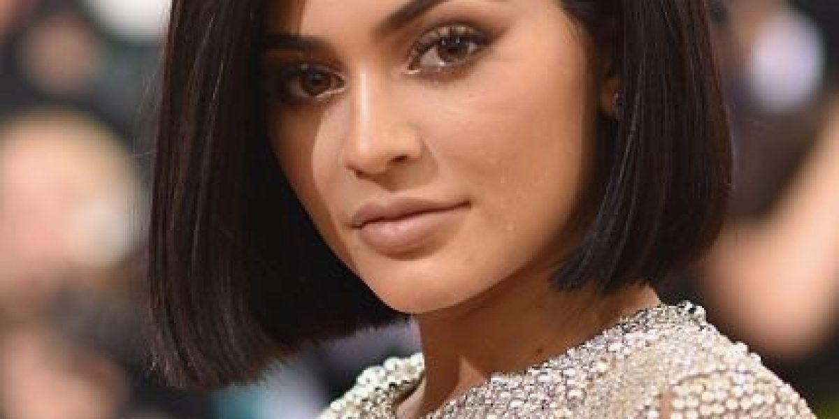 Kylie Jenner y las heridas que sufrió tras asistir a la Met Gala