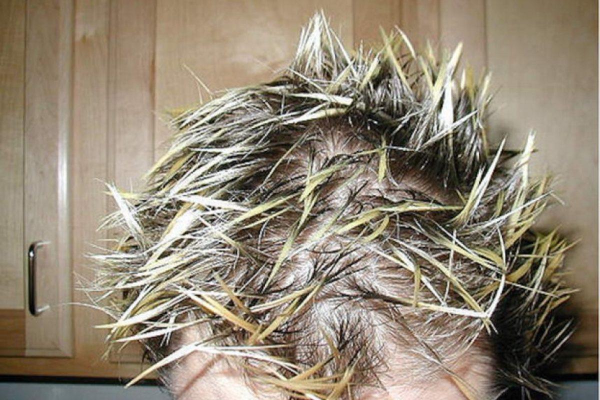 Porque hace 10 años era cool refregarse el pelo con gel y quedar así (¿hola calvicie incipiente?). Foto:vía Tumblr