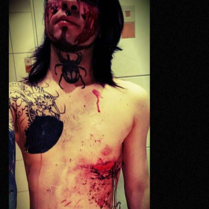 Los cortes sangrantes. Foto:vía Facebook