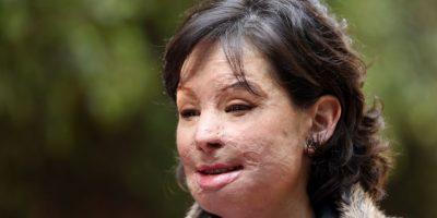 Natalia Ponce de León, víctima de ataque con ácido. Foto:EFE