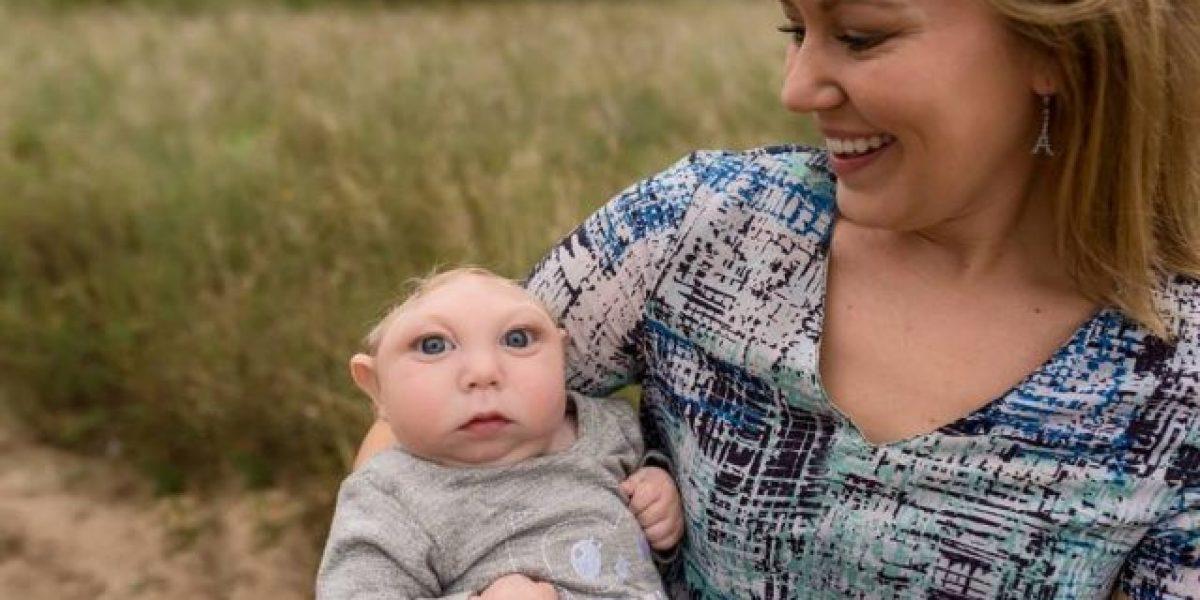 Cumple 2 años bebé que nació sin el 80% del cerebro y moriría en meses