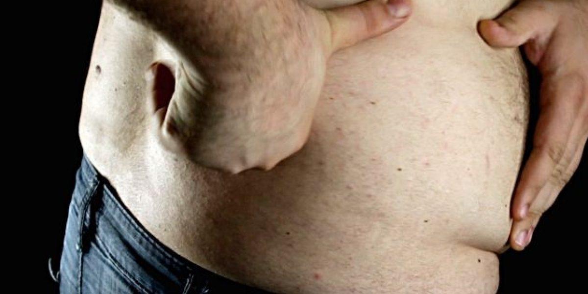 Salud y belleza: Lo que usted necesita saber sobre la celulitis en hombres