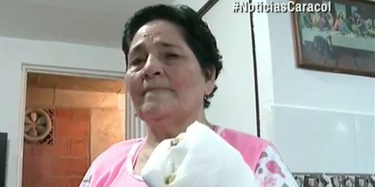 Abuela perdió tres dedos al confundir pólvora con una veladora