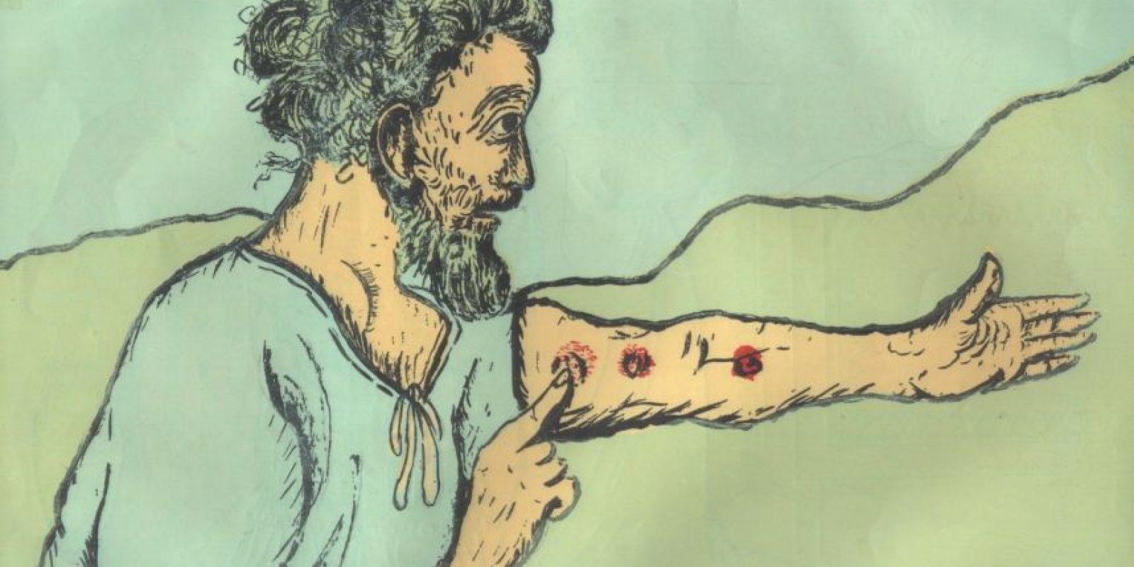 7. Lepra: es una enfermedad infecciosa deformante que tiene 4 mil años de edad. Foto:vía Wikimedia