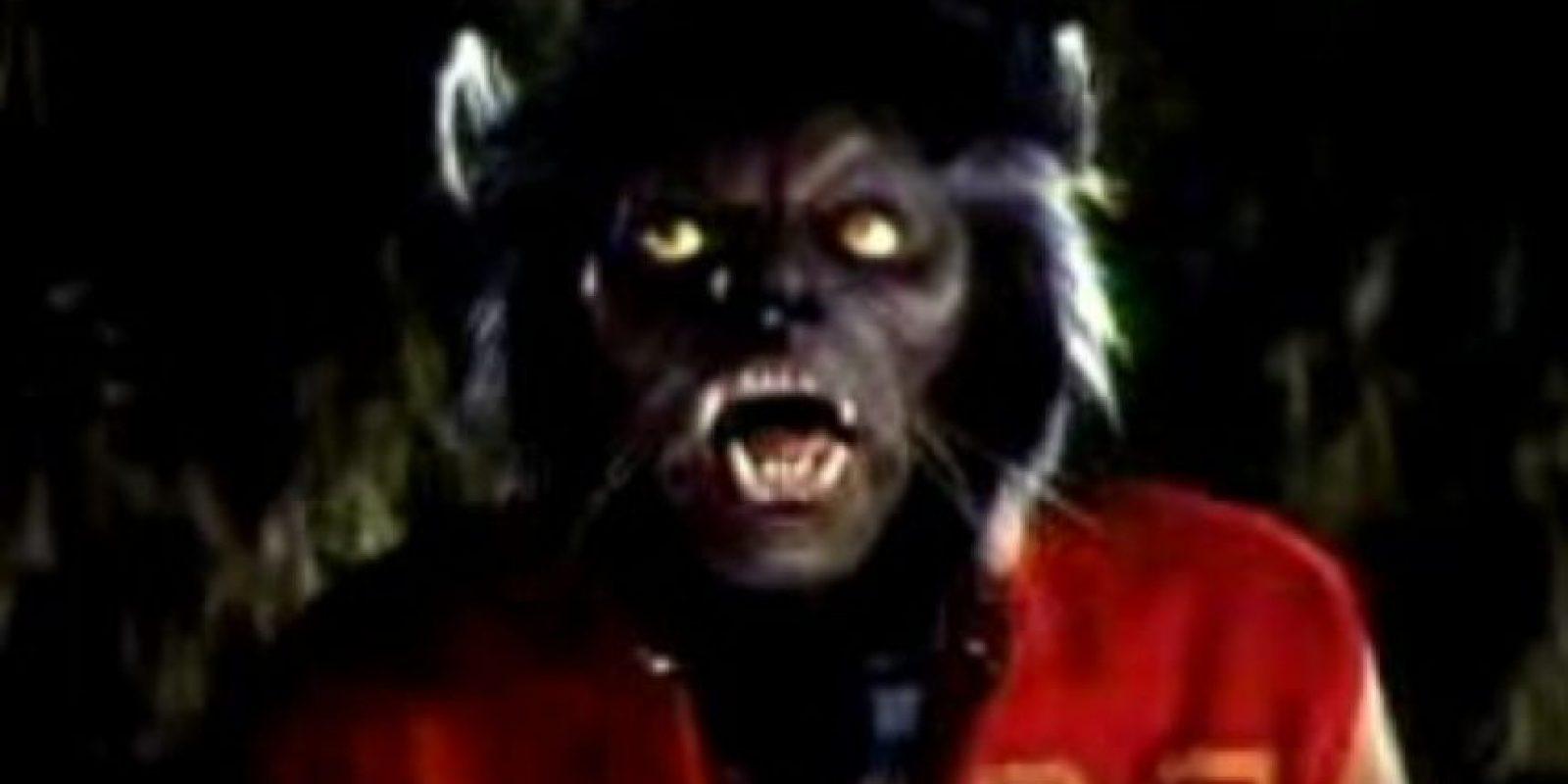 """10. Hipertricosis: se conoce también como """"El Síndrome del Hombre Lobo"""". Se han registrado 50 casos. Foto:vía Youtube/Michael Jackson"""