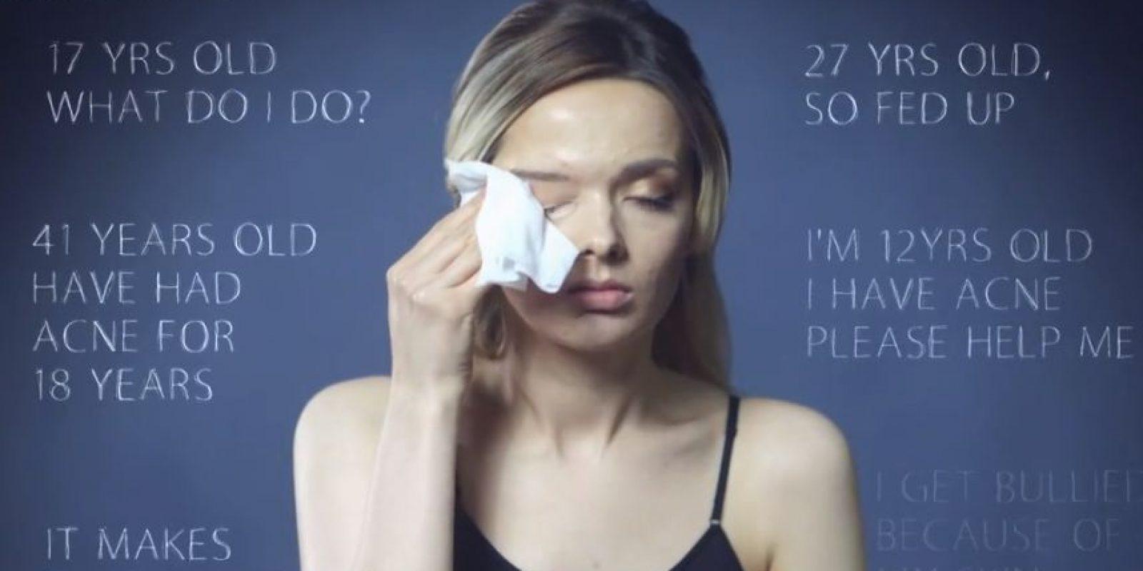 El video tuvo más de 18 millones de reproducciones. Foto:vía Youtube/My Pale Skin