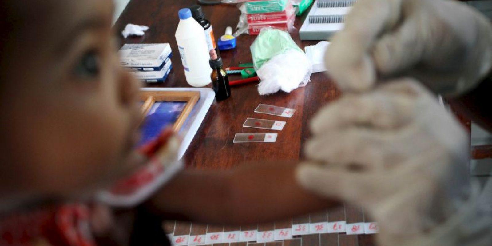 """3. Según """"Medline Plus"""", los primeros síntomas aparecen de 10 días a cuatro semanas de la infección. Foto:Getty Images"""