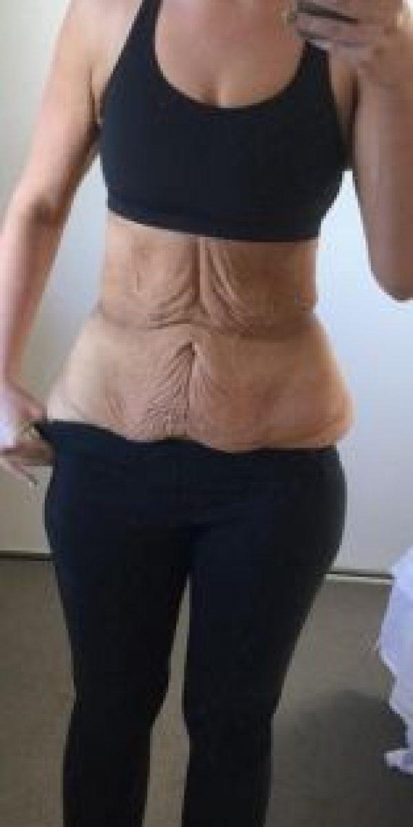 """Aquí muestra cómo quedó su estómago luego de su cirugía de """"manga gástrica"""". Foto:Vía Instagram/simone_anderson"""