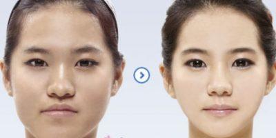 También incide en la elección de pareja. Foto: vía Korean Plastic Surgery /Tumblr