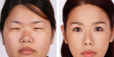 Como es una cultura competitiva, la belleza cuenta. Foto: vía Korean Plastic Surgery /Tumblr