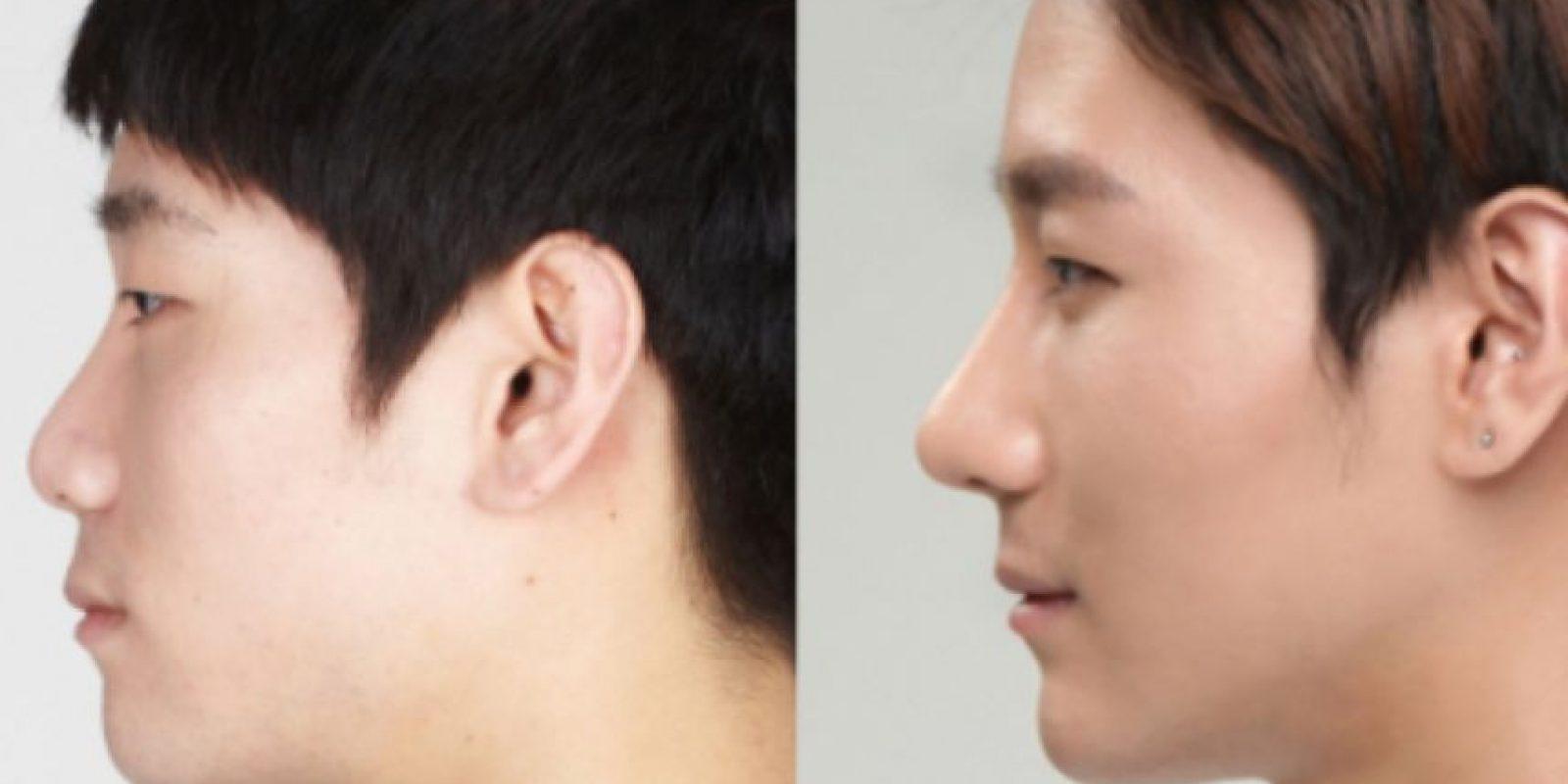 Cirugías de párpados y narices son comunes. Foto: vía Korean Plastic Surgery /Tumblr