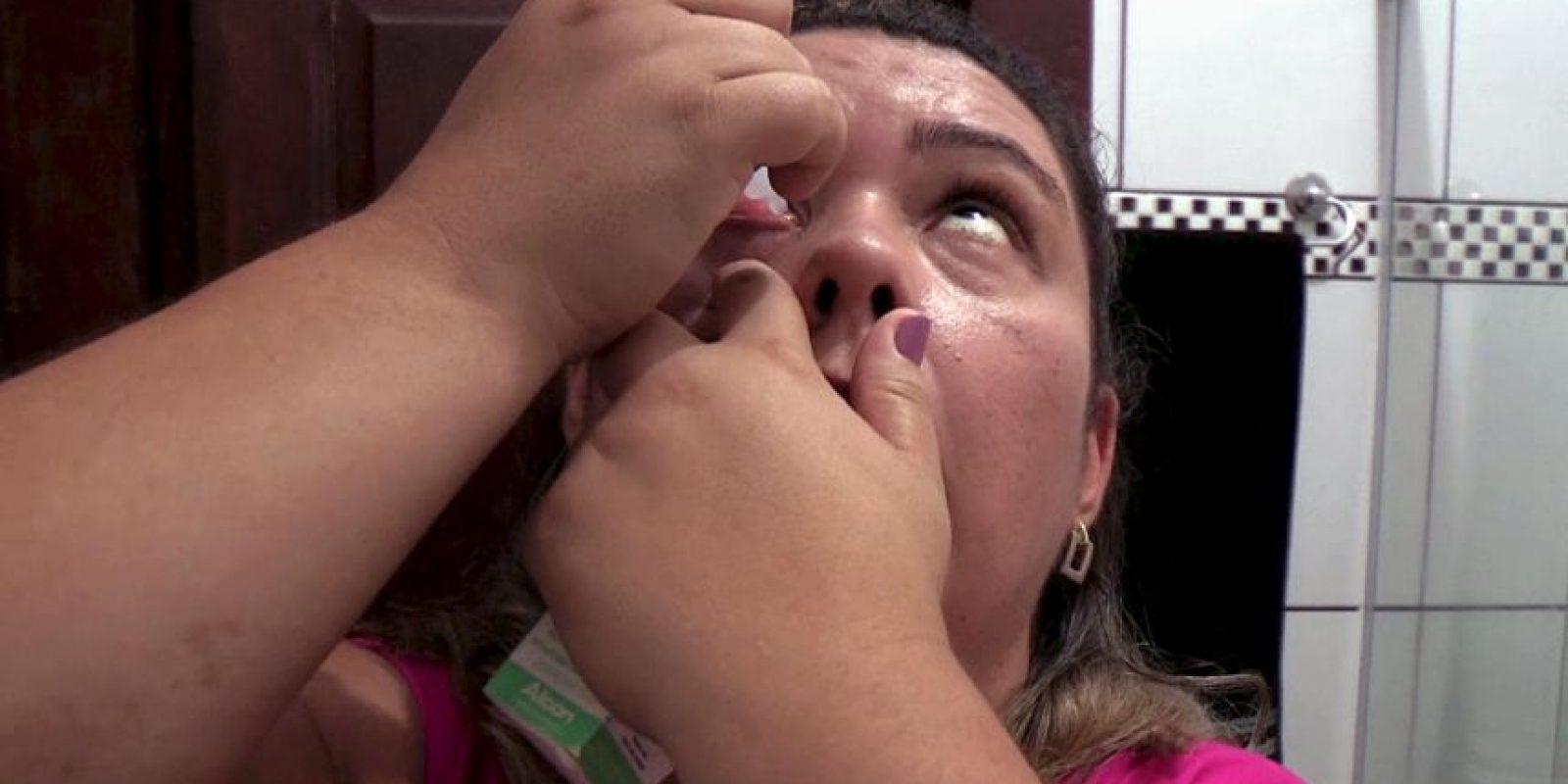 Sus lágrimas son prácticamente de cristal. Foto:vía Barcroft Media