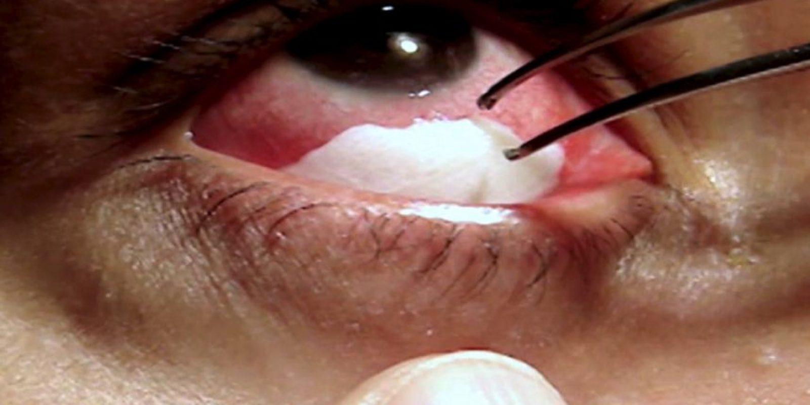 Esta maestra de párvulos de 35 años tiene inmensas placas blancas en sus ojos. Foto:vía Barcroft Media