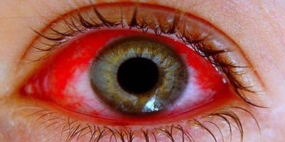 Conjuntivitis: el ojo se infecta por bacterias externas. Foto:vía Wikipedia