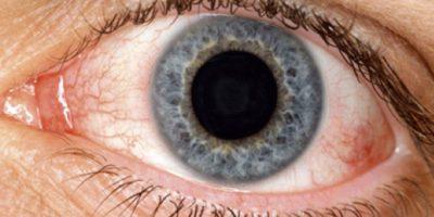 Ojo seco: se produce por la insuficiencia del ojo para mantener una capa estable de lágrimas. Foto:vía Wikipedia