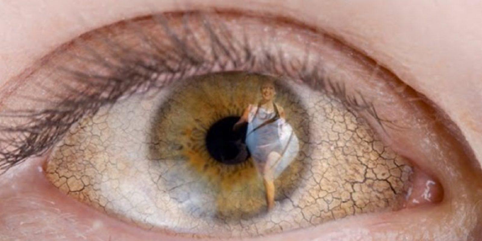 Esto produce irritación constante. A veces se formulan gafas. Foto:vía Getty Images