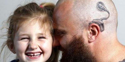 Padre se tatuó en la cabeza aparato auditivo para darle seguridad a su hija sorda