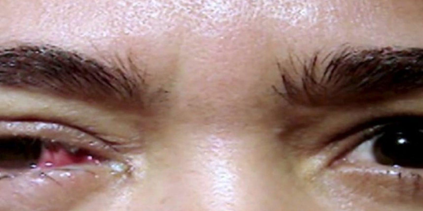 Ha sufrido de este mal desde los 15 años. Apenas parpadea, otra plaqueta sale de su ojo. En el oculista ha tenido que remover hasta 30 por día. Y por 20 años, ha impresionado a los doctores con su caso. Foto:vía Barcroft Media
