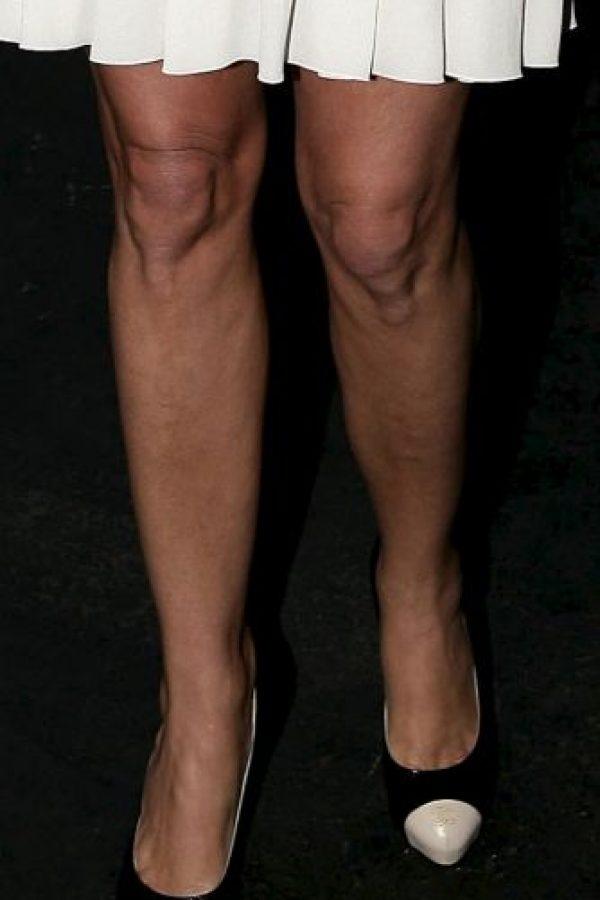 Así eran sus rodillas en 2007 Foto:Getty Images