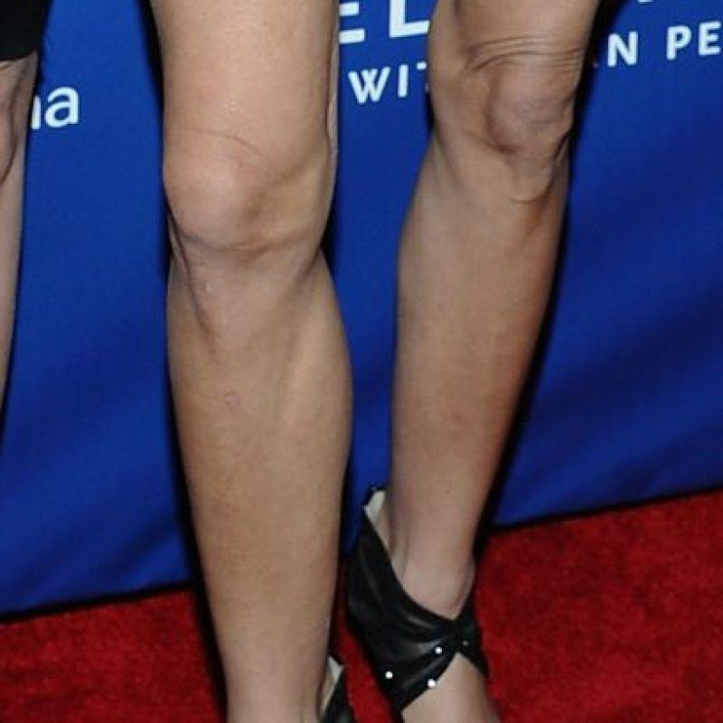 Esta es la apariencia que tenían en 2012, fecha de su supuesta cirugía. Foto:Getty Images