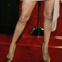 En 2004, así se veian las rodillas de Jolie Foto:Getty Images