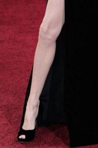En 2012, surgieron rumores sobre su posible cirugía de rodilla. Foto:Getty Images
