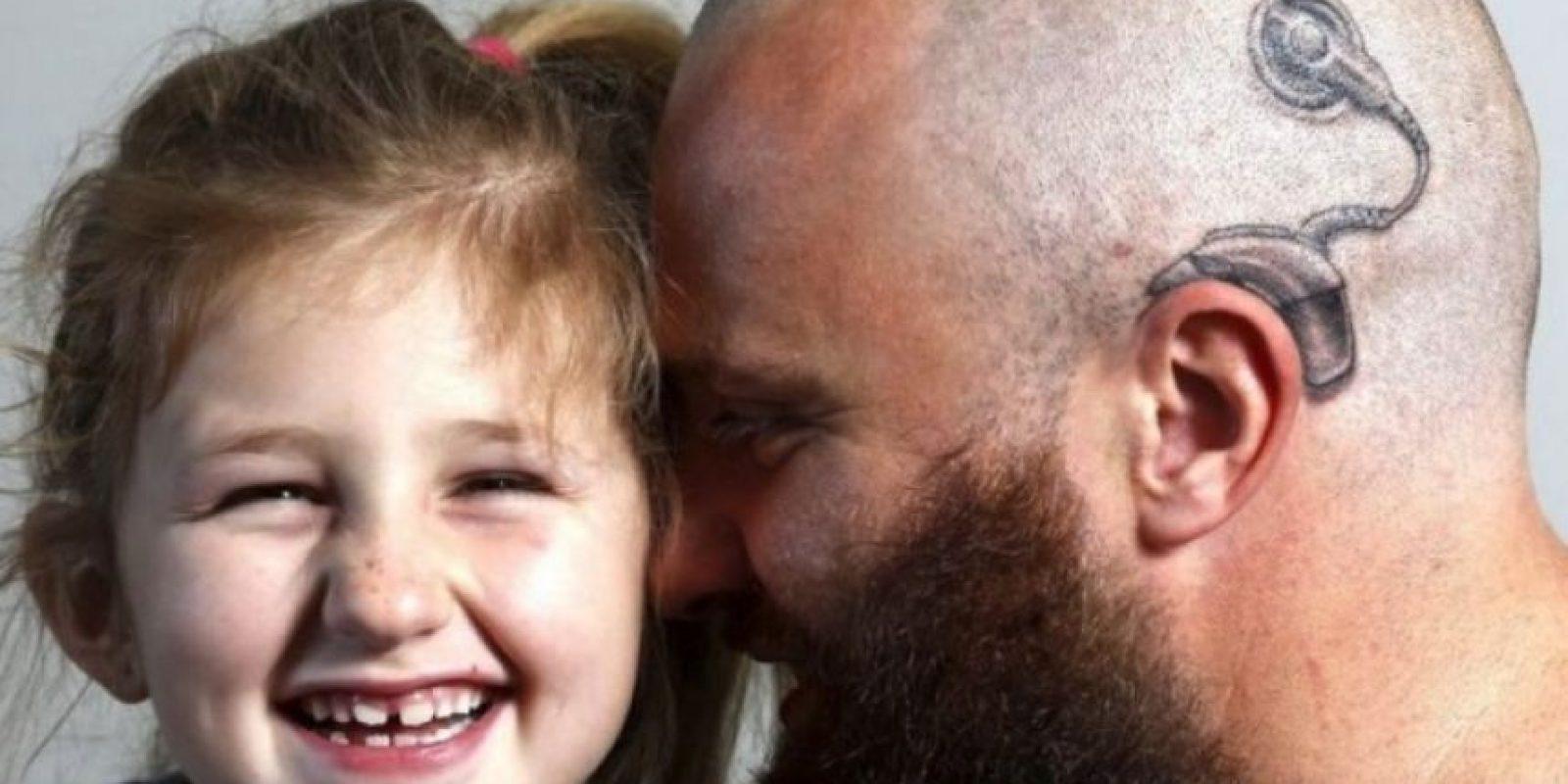 3. Padre se tatuó en la cabeza aparato auditivo para darle seguridad a su hija sorda Foto:Facebook.com/anitaalistair.campbell