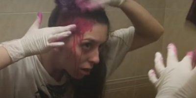 Y lo peor es cuando la frente, mejillas y hasta cuello sufren las consecuencias. Foto:Vía Youtube