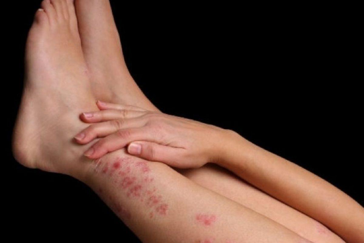 11. Al momento de la depilación con cera o rastrillo. Y justo se cortan o irritan cuando iba a usar una mini falda sin medias.