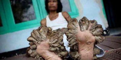"""Dede Koswara, mejor conocido como el """"Hombre árbol"""", en Indonesia, Se ha sometido a nueve operaciones para quitarse las verrugas que le crecen sin cesar porque padece del Virus del Papiloma Humano Foto:Vía www.dogguie.net"""