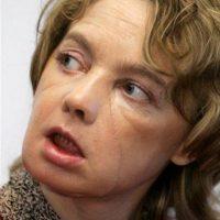 En noviembre de 2007, la francesa Isabelle Dinoire se convirtió en la primera mujer del mundo en recibir un trasplante parcial de cara. Se quedó dormida y su perro le mordió el rostro Foto:Vía BBC