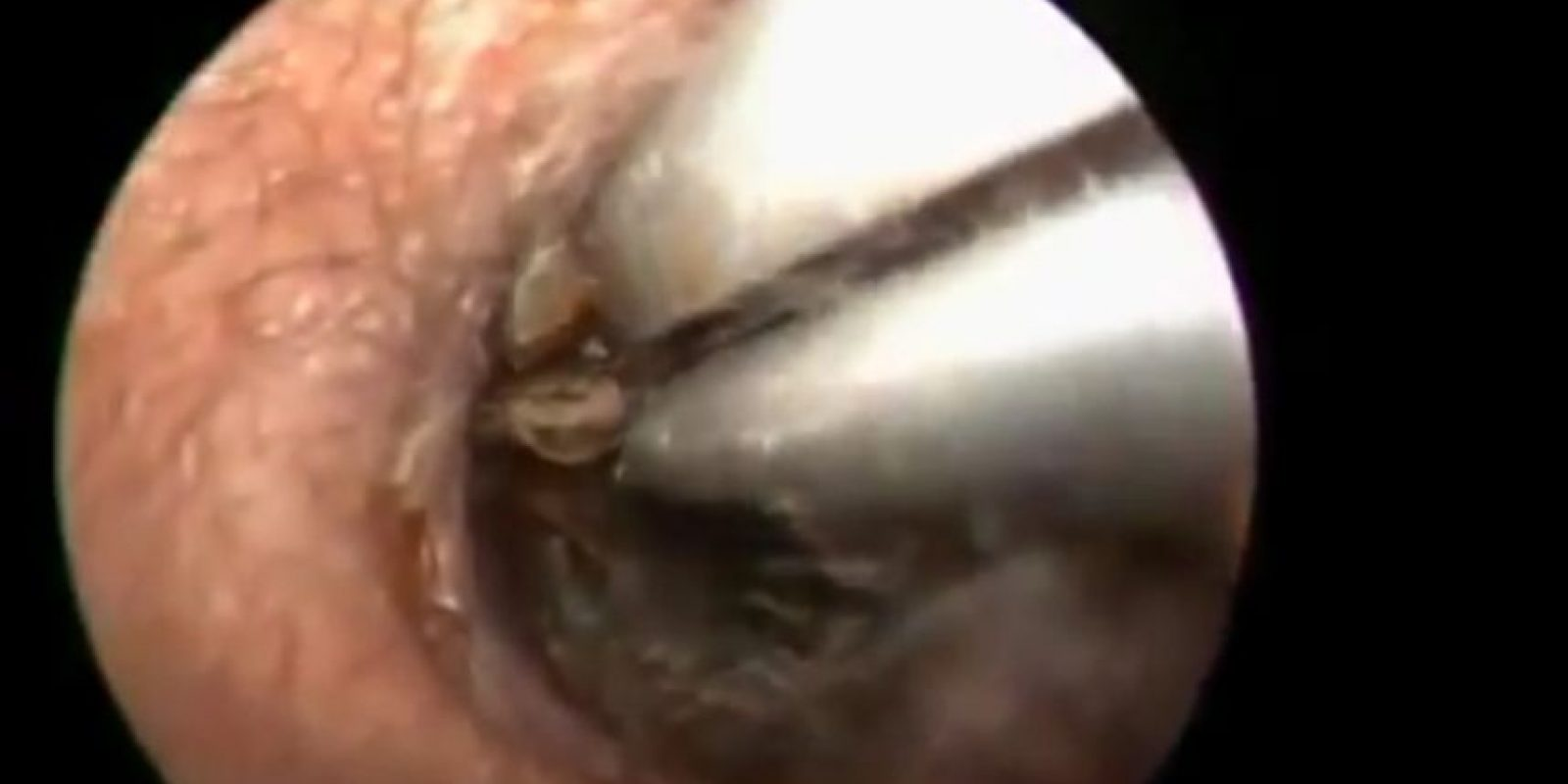A este hombre le sacaron una cucaracha de la oreja Foto:Vía Youtube