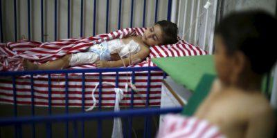 Niña siria herida por los bombardeos. Foto:AFP