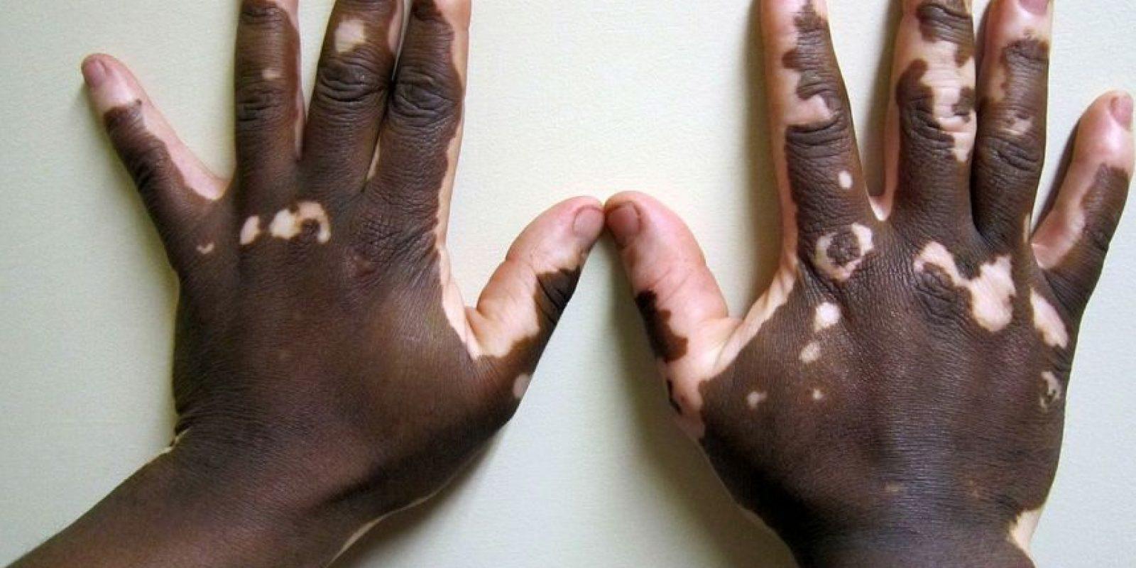 El vitíligo también puede ser hereditario. Los niños cuyos padres padecen de esta enfermedad tienen mayor probabilidad de desarrollar vitíligo. Foto:Wikipedia