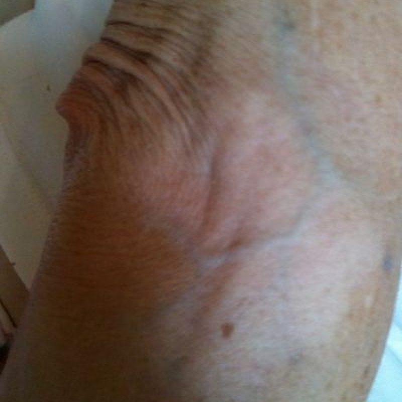 Con el vitíligo, el sistema inmunitario puede destruir los melanocitos de la piel. También es posible que uno o más genes aumenten la probabilidad de que una persona padezca la enfermedad. Foto:Wikimedia