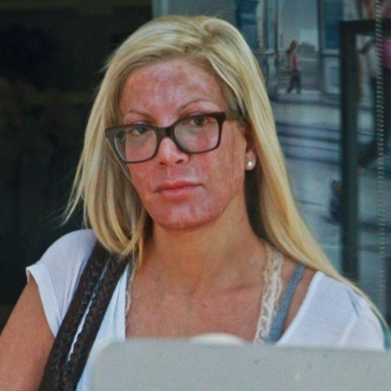 La actriz se sometió a una exfoliación química, una microdermoabrasión facial y encerado de cejas. Foto:Grosby Group