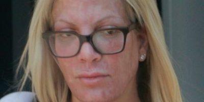 """Así de horrible luce el rostro de """"Donna Martin"""" de """"Beverly Hills"""""""