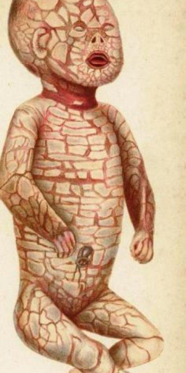 Tiene Ictiosis Arlequin, condición en la piel que hace que su piel no tenga la primera capa. Foto:vía Wikipedia