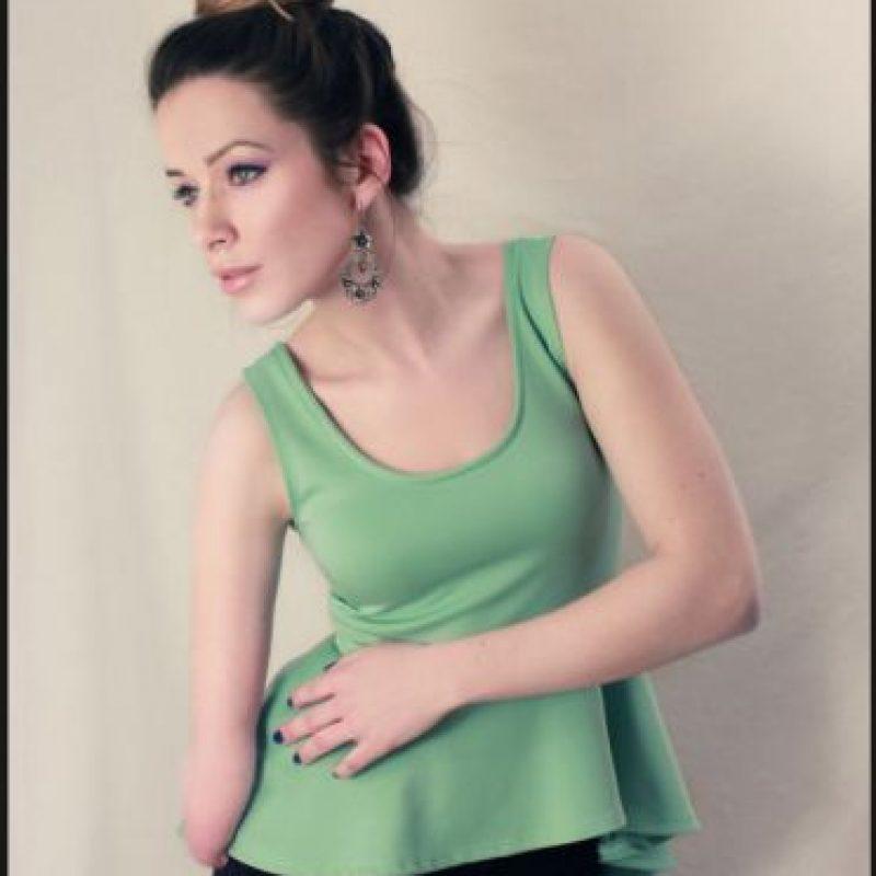 Al convertirse en una de las primeras modelos profesionales amputadas Foto:Tumblr