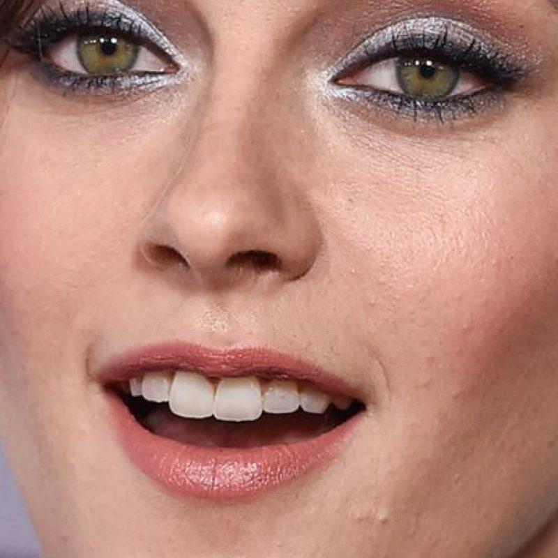 Los granos en la cara de Kristen Stewart. Foto:vía Celebrity Closeup/Tumblr