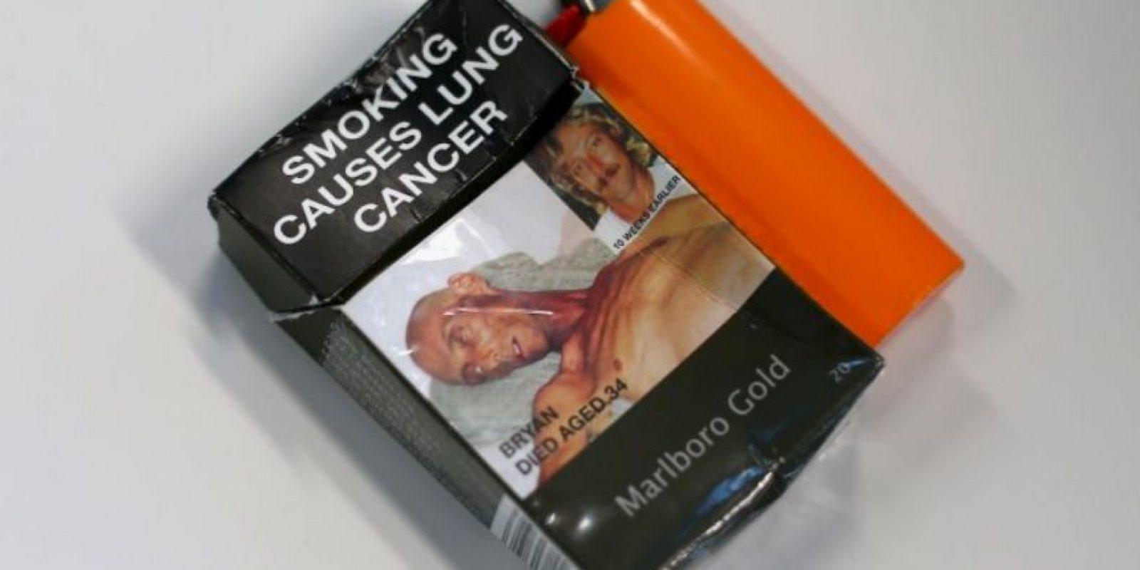 Cáncer de pulmón. Foto:vía Getty Images